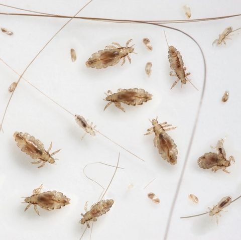 Parents Lice Survival Guide