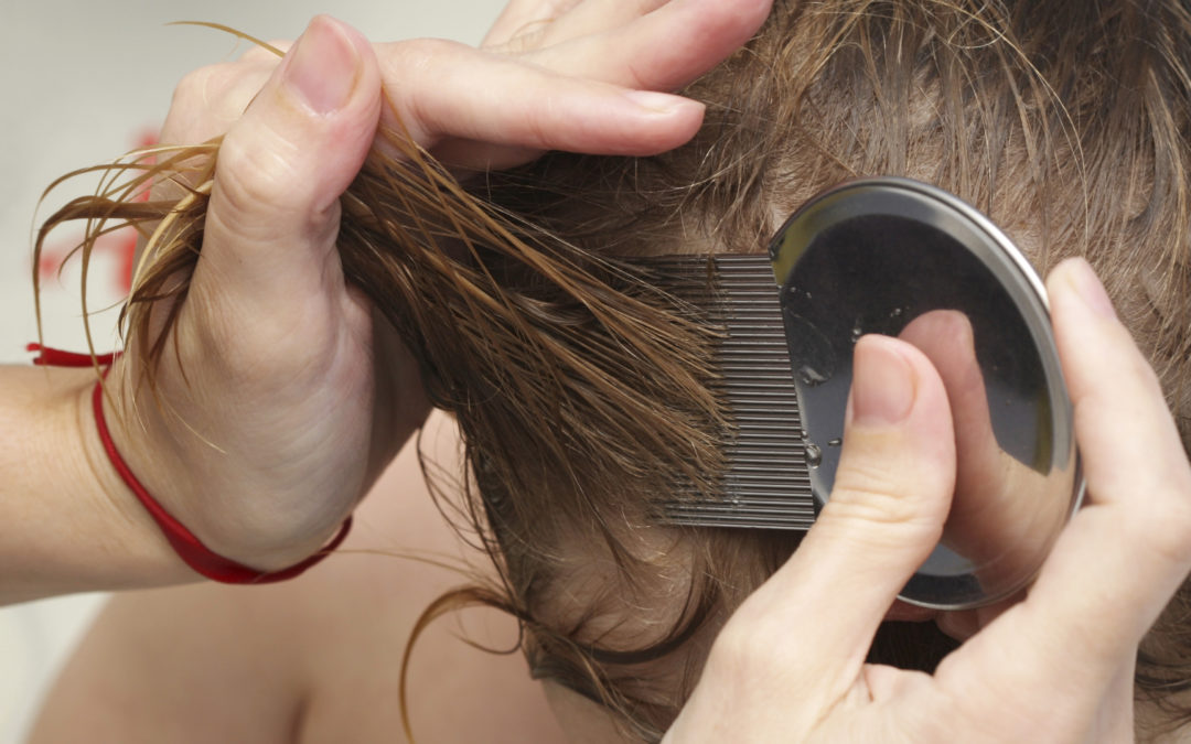Important Head Lice Facts