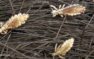 Lice Increase With Covid-19 Pandemic